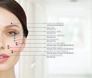 HYAcorp ژل هیاکورپ اجزای صورت